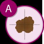 Sintomi del melanoma A | APaIM - Associazione Pazienti Italia Melanoma