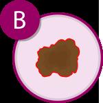 Sintomi del melanoma B | APaIM - Associazione Pazienti Italia Melanoma