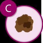 Sintomi del melanoma C | APaIM - Associazione Pazienti Italia Melanoma